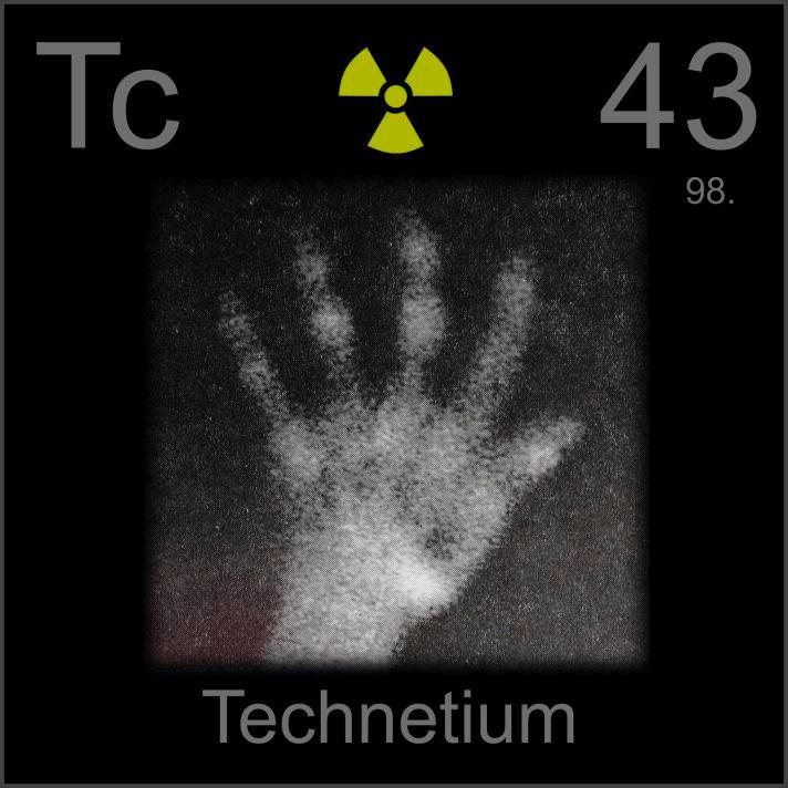 Technetium Atlas of technetium bone scans